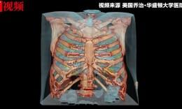 美国发布3D视频首次呈现新冠患者肺损伤