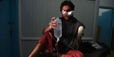 阿富汗首都致百人伤亡爆炸袭击现场曝光