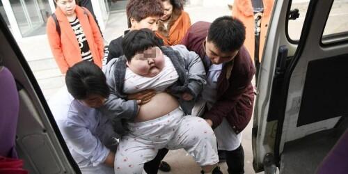 7岁胖丫体重75公斤 减肥已花费百万元