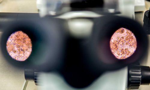 显微镜下的供体猪胰岛